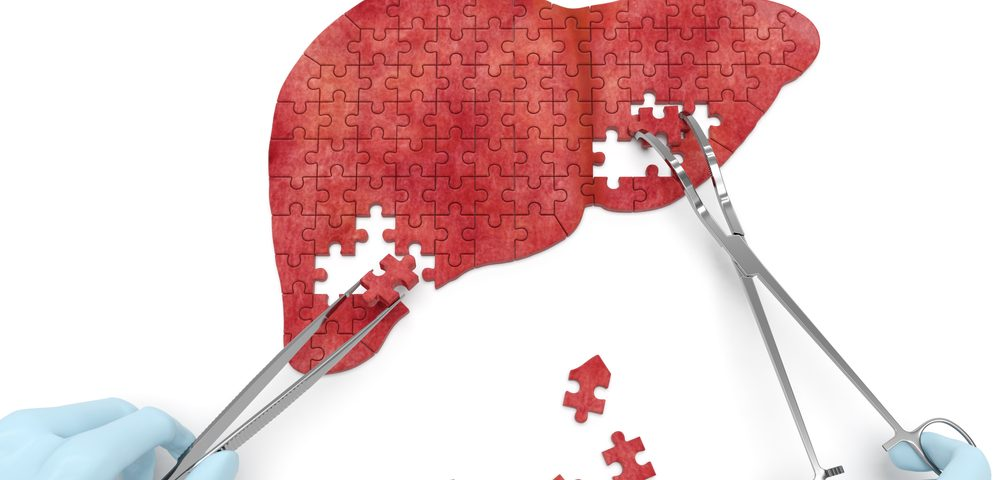 Liver Cancer Cells Find Alternatives When Fat, Their Main Fuel, Disappears